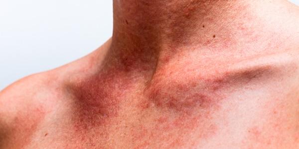 Кратък наръчник по слънчеви алергии от специалисти за неспециалисти