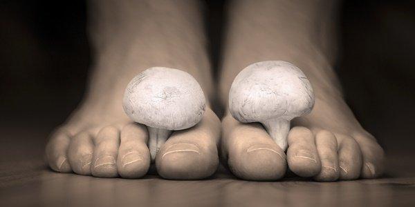 Упорити, по-упорити, най-упорити: гъбички по ноктите!