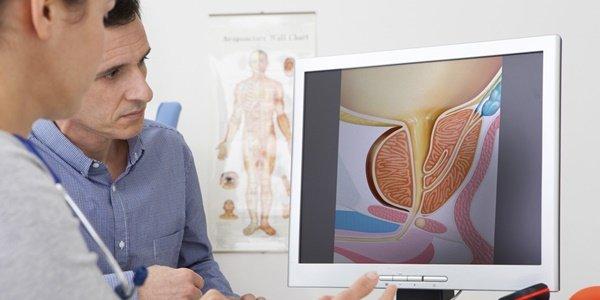 Простатата: малка жлеза с огромно значение!